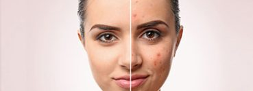 Best Acne Scar Treatment Oakville