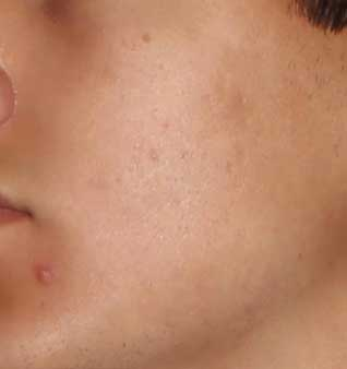 Severe Acne Treatment - After