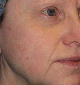 Acne Scars Treatment - After