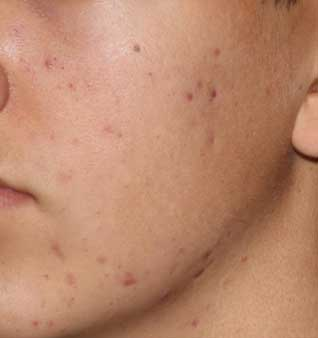 Severe Acne Treatment - Before