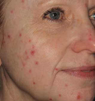 Acne Scars Treatment - Before