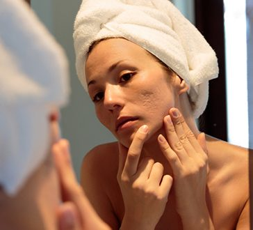 Acne & Blemish Treatment |Med Spa Oakville