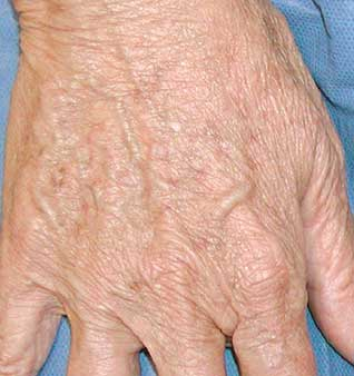 Anti-Aging Hand Treatments - After