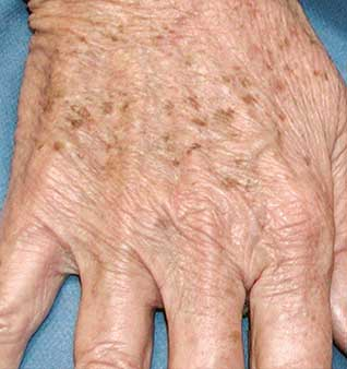 Anti-Aging Hand Treatments - Before