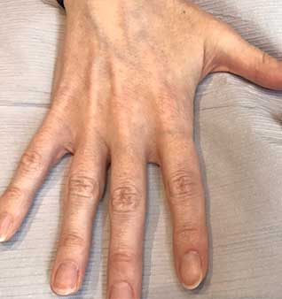 Anti-Aging Hand Treatments -Before