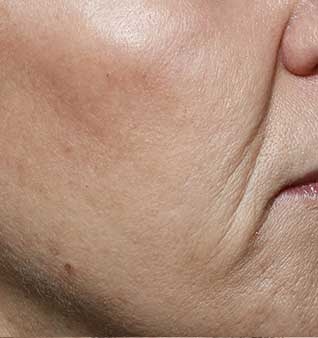 Dermal Filler Treatment - After