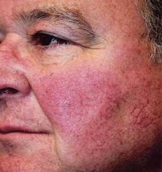 Facial Veins & Capillaries - Before