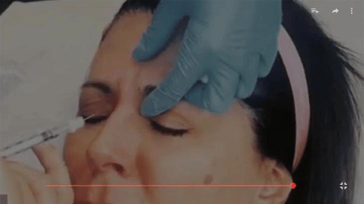 Botox Cosmetic® / Dysport® / Xeomin® Treatment - Apt Medical Aesthetics youtube thumbnail