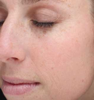 Brown Spots and Sun Damage - After