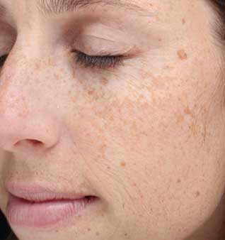 Brown Spots and Sun Damage - Before
