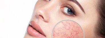 Facial Veins and Capillaries