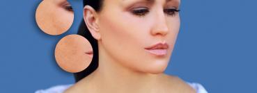 Forever Clear BBL™ Treatment - APT Medical Aesthetics