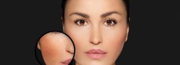 IPL Photo Facial - APT Medical Aesthetics