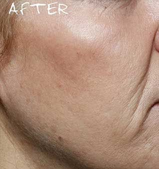 Facial Volume Loss Treatment - After
