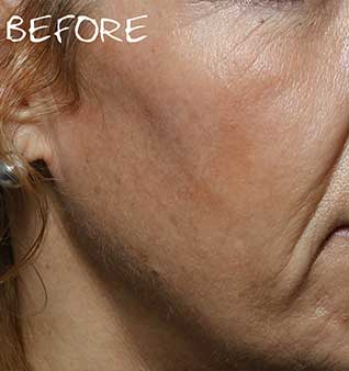 Facial Volume Loss Treatment - Before
