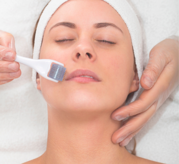 Microneedling Treatment Oakville