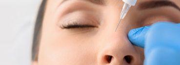 Nose Reshaping - APT Medical Aesthetics