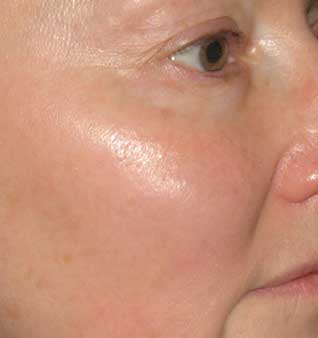 Rosacea Remedies and Skin Redness Treatment - After