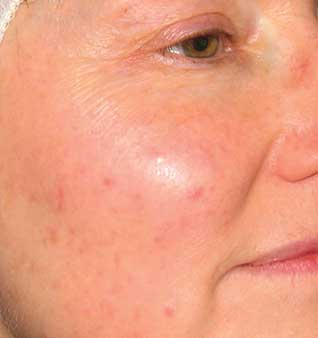 Rosacea Remedies and Skin Redness Treatment - Before
