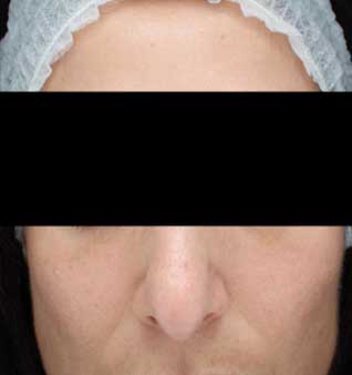 chemical peel - after