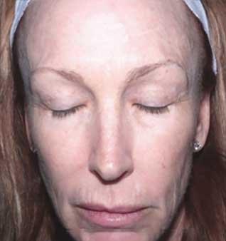 Laser Skin Resurfacing - After