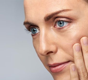 Wrinkles and Fine Lines Treatments - APT Medical Aesthetics