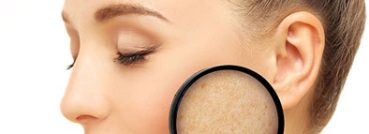 melasma treatment - APT Medical Aesthetics