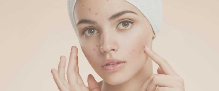 Pimples and the cure, an APT Medical Aesthetics blog