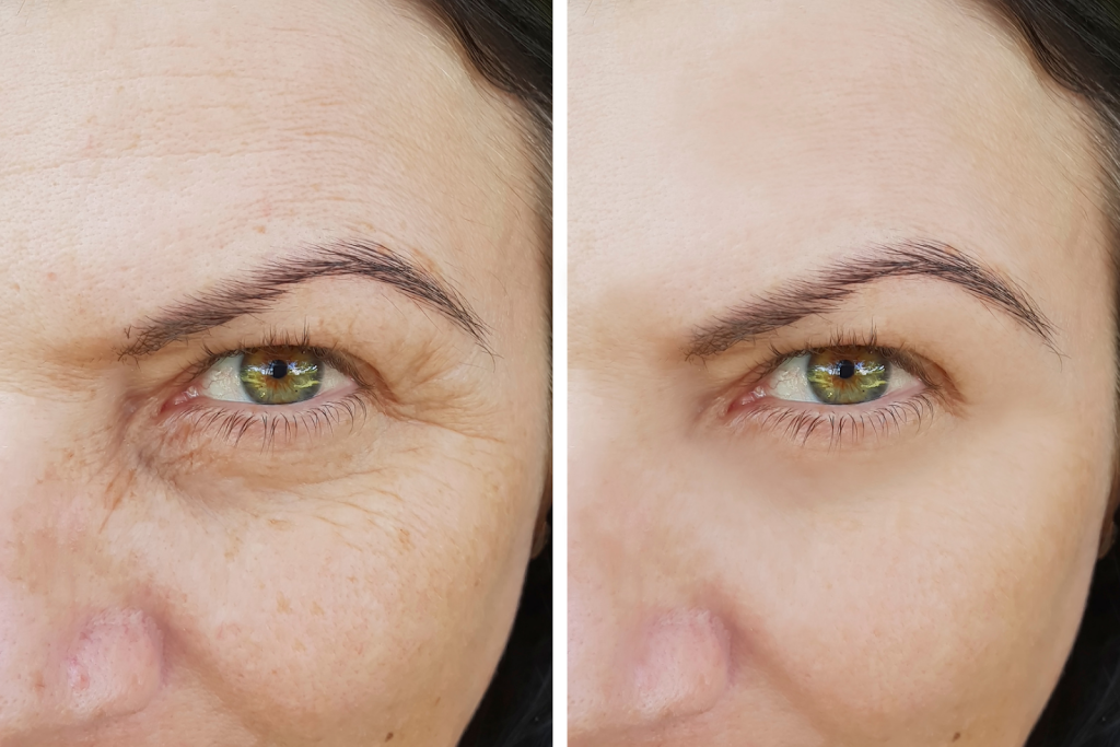 treatments for wrinkles Oakville