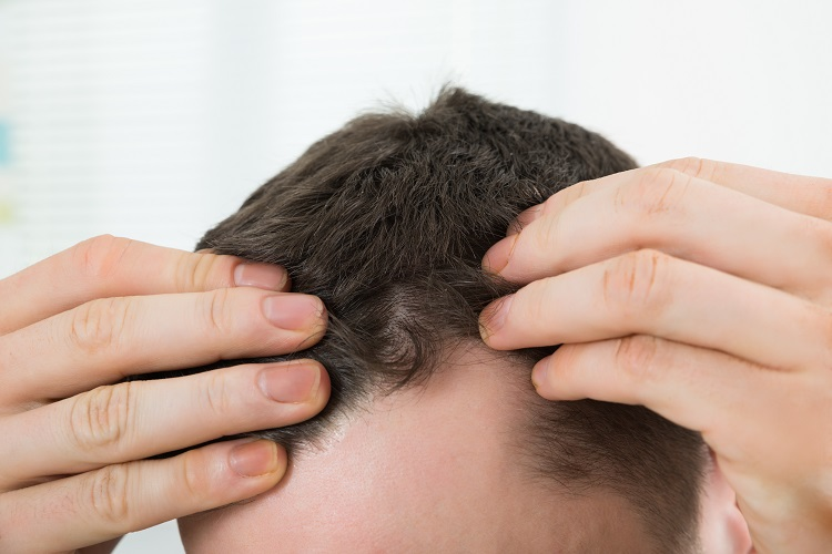 Thinning hair fixing Oakville