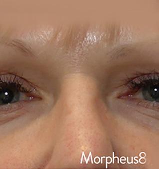 Morpheus8® Treatment - After