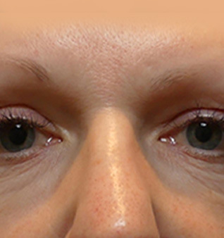 Morpheus8® Treatment - Before