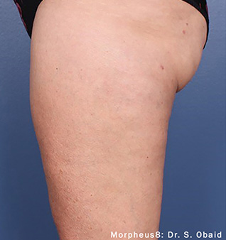 Morpheus8 before and after photo of legs
