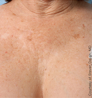 Ultherapy before and after photos of chest