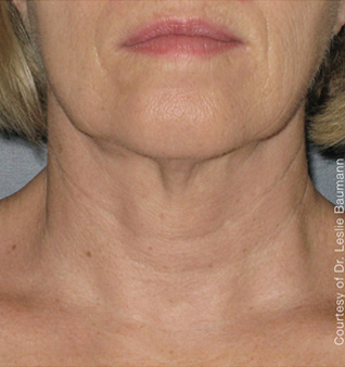 Ultherapy® Treatment - After