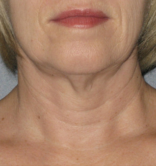 Ultherapy® Treatment- Before