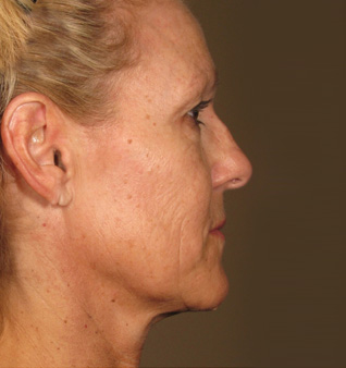 Ultherapy before and after photos of chin