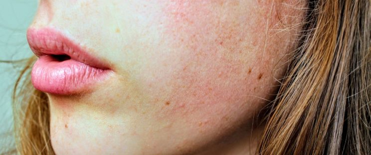 A woman with reddened skin after sun exposure